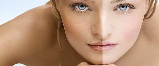 Volt már csokoládé színű a bőröd?