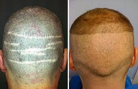 Greffe de cheveux mindenkinek bizalommal!